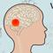 Thumbnail voor 'Welke klachten geeft een hersentumor?'